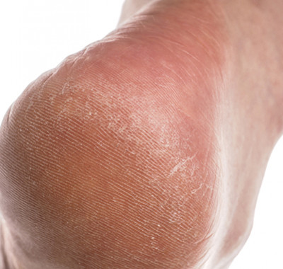 crevasse pied orteil